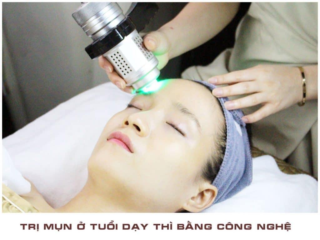 tri-mun-cong-nghe-moc-thien-huong