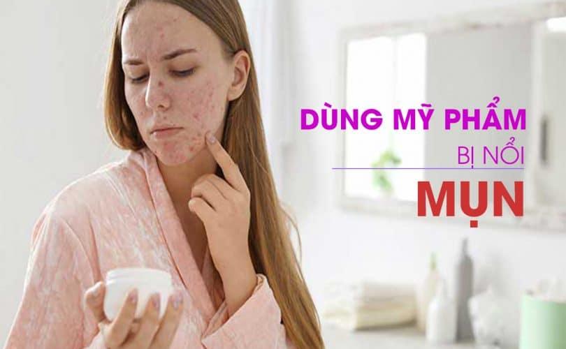 DUNG-MY-PHAM-BI-NOI-MUN