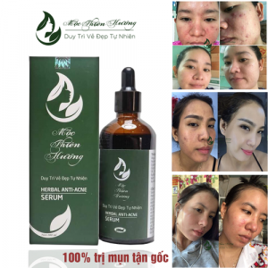 serum-tri-mun-100ml-moc-thien-huong